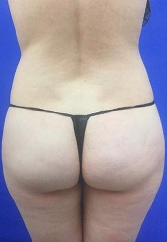 18-24 year old woman treated with Brazilian Butt Lift  before 2464576