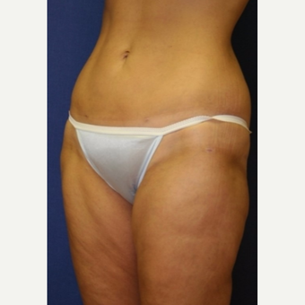 38 year old woman treated with liposuction to abdomen, hips and thighs after 3042446