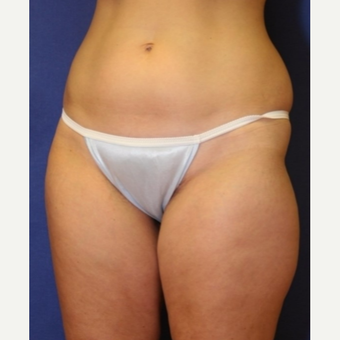 38 year old woman treated with liposuction to abdomen, hips and thighs before 3042446