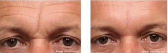 Botox and Fillers to Improve Frown Area before 1030388