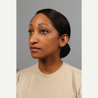 25-34 year old woman treated with Rhinoplasty before 3723865