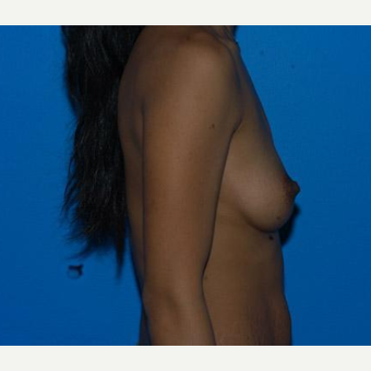 Breast Augmentation before 3206570