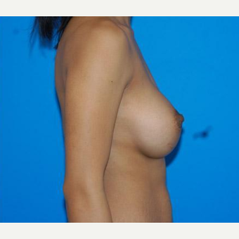 Breast Augmentation after 3206570