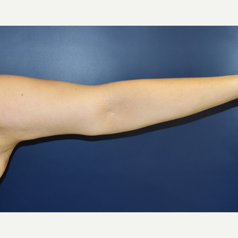 25-34 year old woman treated with Arm Lift after 3489804