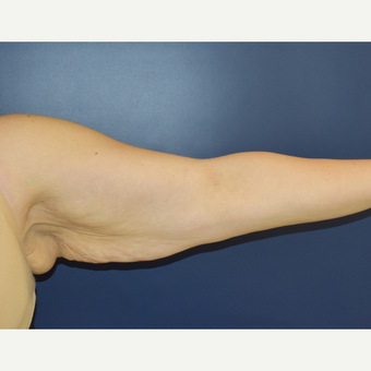 25-34 year old woman treated with Arm Lift before 3489804