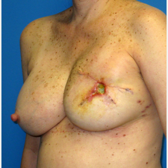 55-64 year old woman treated with Breast Reconstruction before 3266410