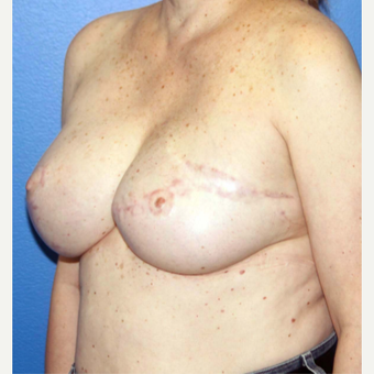 55-64 year old woman treated with Breast Reconstruction after 3266410