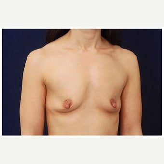 35-44 year old woman treated with Inspira Breast Implants before 1910990