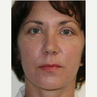 45-54 year old woman treated with Laser Peel after 2062958