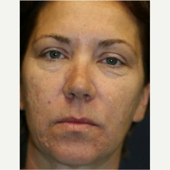 45-54 year old woman treated with Laser Peel before 2062958