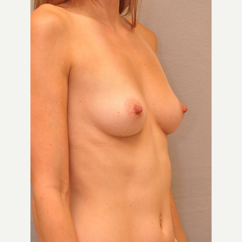 25-34 year old woman treated with Breast Augmentation before 3447888