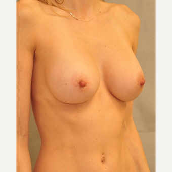 25-34 year old woman treated with Breast Augmentation after 3447888