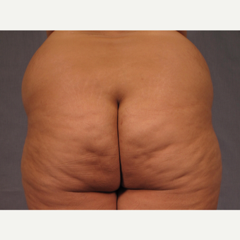 35-44 year old woman treated with Brazilian Butt Lift before 3308508