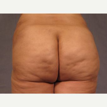 35-44 year old woman treated with Brazilian Butt Lift after 3308508