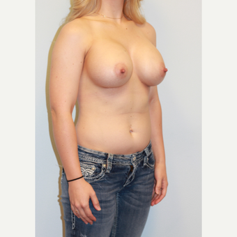 18-24 year old woman treated with Breast Augmentation after 3027362