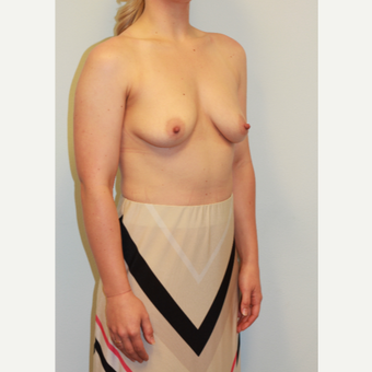 18-24 year old woman treated with Breast Augmentation before 3027362
