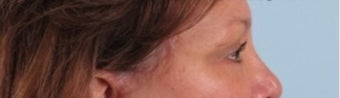 55-64 year old woman treated with Brow Lift ( Endoscopic Biplanar Brow Lift)