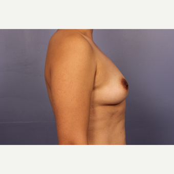 Late 30s female, Breast Augmentation before 3293266