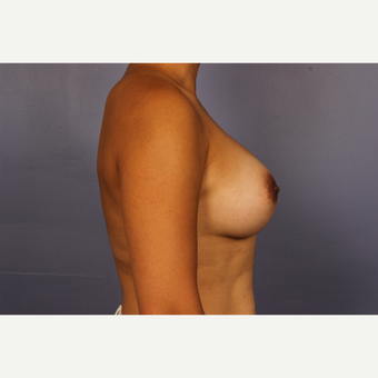 Late 30s female, Breast Augmentation after 3293266