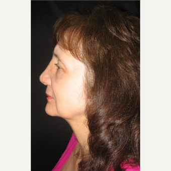 55-64 year old woman treated with Revision Rhinoplasty after 3187222