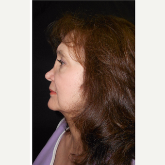 55-64 year old woman treated with Revision Rhinoplasty before 3187222