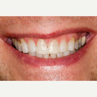 45-54 year old man treated with Porcelain Veneers