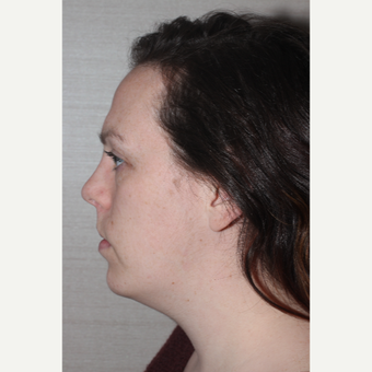 18-24 year old woman treated with Chin Implant after 3130046