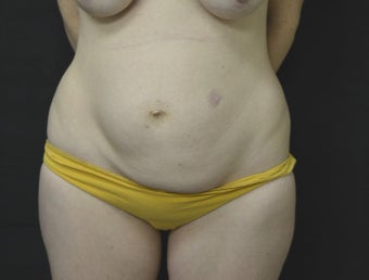 35-44 year old woman treated with Tummy Tuck before 3181995