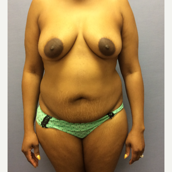 35-44 year old woman treated with Mommy Makeover before 3169458