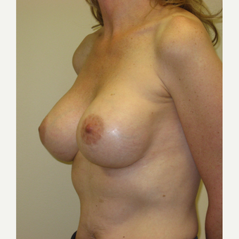 45-54 year old woman treated with Breast Augmentation after 3776344