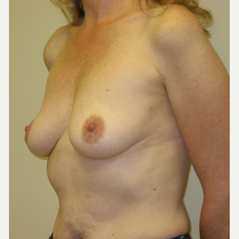 45-54 year old woman treated with Breast Augmentation before 3776344