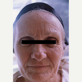 75 and up year old woman treated with Chemical Peel before 3543264