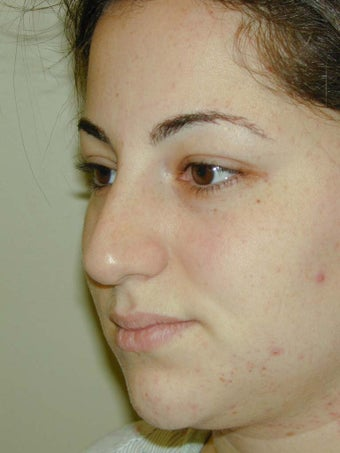 Middle-Eastern female desiring a softer but still ethnic nose
