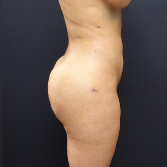 25-34 year old woman treated with Butt Lift after 3267070