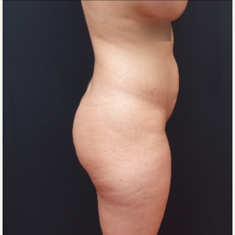 25-34 year old woman treated with Butt Lift before 3267070
