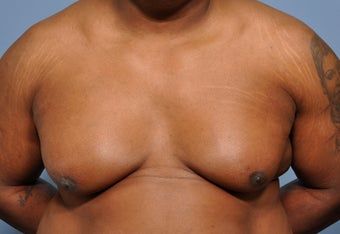 50 Year Old Male Treated For Severe Gynecomastia before 972853