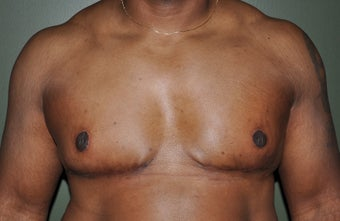 50 Year Old Male Treated For Severe Gynecomastia after 972853