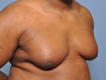 50 Year Old Male Treated For Severe Gynecomastia 972853