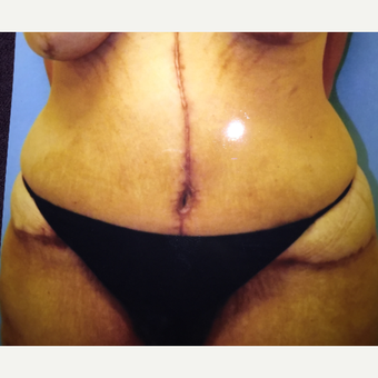 45-54 year old woman treated with Tummy Tuck after 3333465