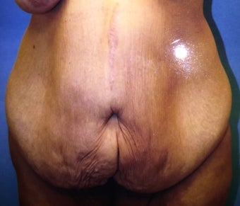 45-54 year old woman treated with Tummy Tuck before 3333465