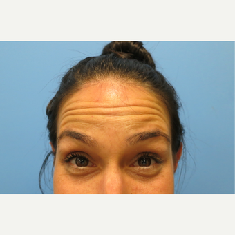 25-34 year old woman treated with Botox before 3822592