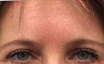 Brow lift, Eyelid Rejuvenation 45-54 year old female after 3841044