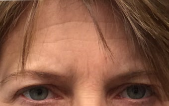 Brow lift, Eyelid Rejuvenation 45-54 year old female before 3841044