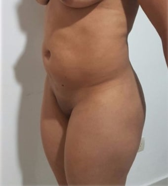 25-34 year old woman treated with Liposculpture post tummy tuck, 2 months post op. before 3288196