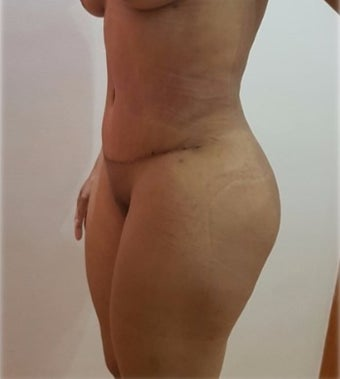 25-34 year old woman treated with Liposculpture post tummy tuck, 2 months post op. after 3288196
