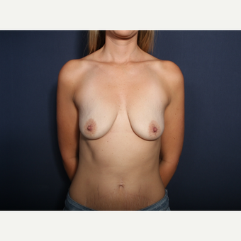 35-44 year old woman treated with Breast Lift with Implants (view 1 of 2) before 3788420