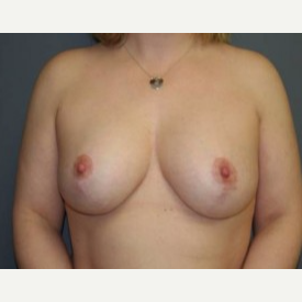 25-34 year old woman treated with Breast Lift after 3339548