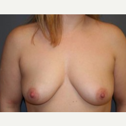 25-34 year old woman treated with Breast Lift before 3339548