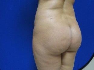 25 year old Brazilian Butt Lift before 1069852
