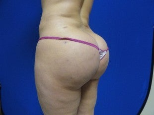 25 year old Brazilian Butt Lift after 1069852